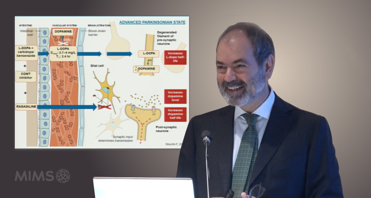 The Role of MAO-B Inhibitor in Parkinson's Disease - When, Why & How