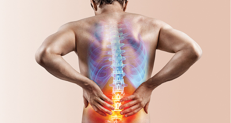 Managing low back pain in primary care: A concise review