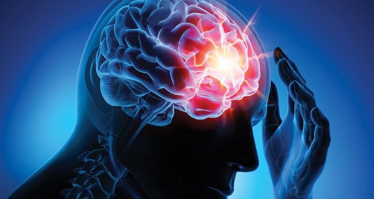 Challenges in treating refractory epilepsy and why new antiepileptic drugs are required