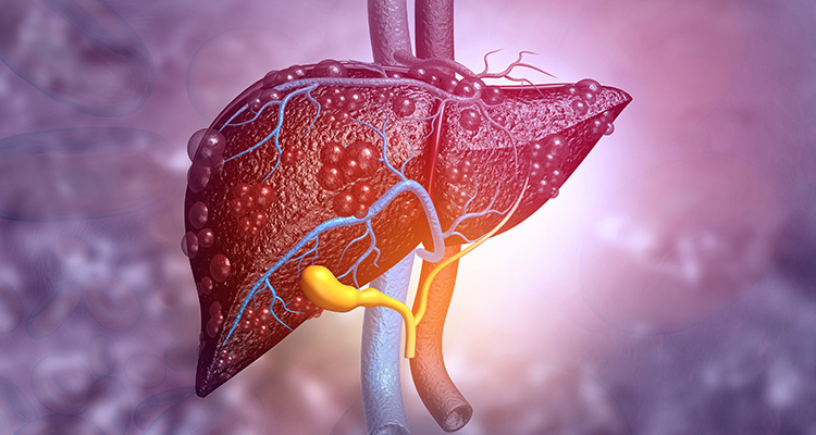 The impact of the ANSWER study on the economic burden of liver cirrhosis