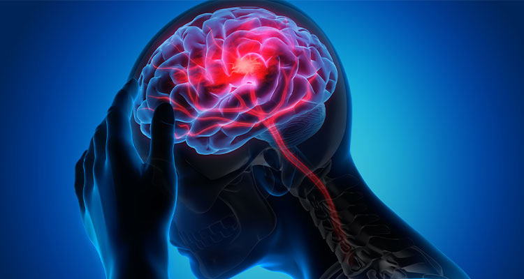Navigating the Choice of NOACs for Stroke Prevention in AF