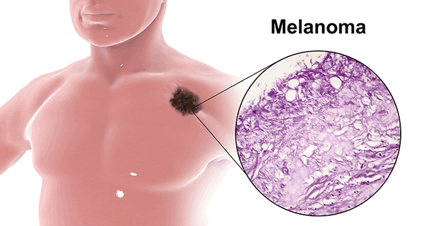 OncoForum Melanoma Series: An Expert's Highlights and Perspective on Malignant Melanoma