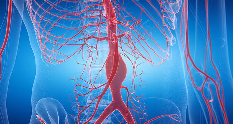 Aortic Aneurysms: Keeping Watch Before They Rupture