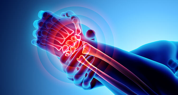 Managing pain in OA: A concise review of COX-2 selective NSAIDs