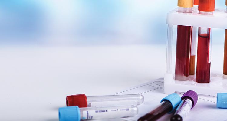 Myelofibrosis: Part I - Understanding the disease