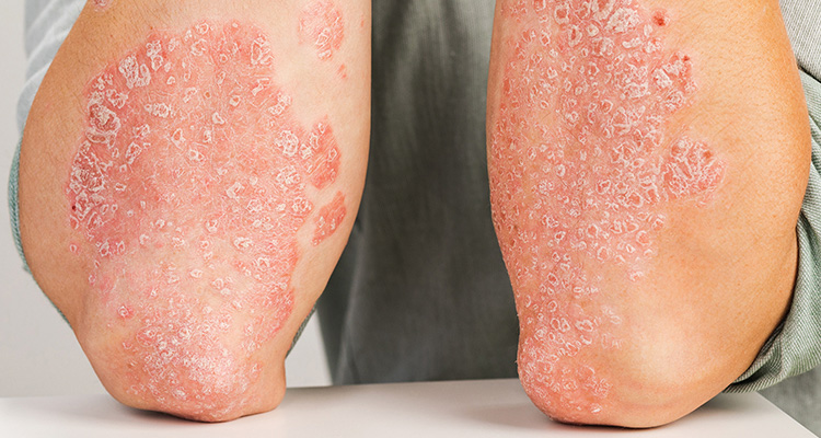 The Future Direction of Topical Psoriasis Treatment to Improve Patient Outcomes
