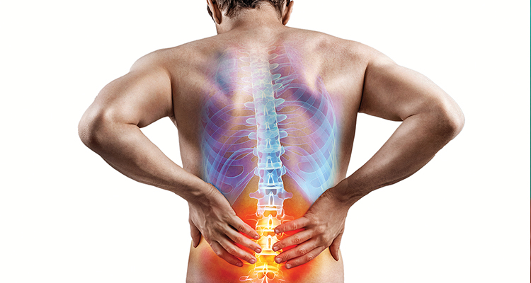 Pharmacists' role in managing low back pain