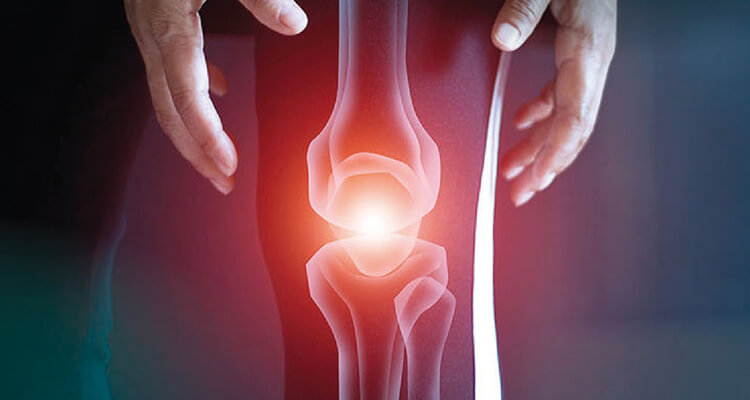 Updates in the management of knee OA: Optimising care with SYSADOAs