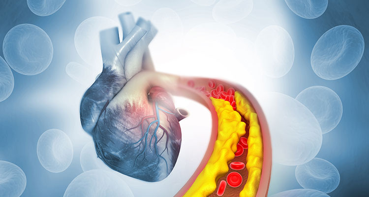 Never Too Old to Benefit from Lipid Lowering